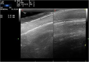Ultrasound characteristics (10–22-MHz linear probe). Comparison of the alopecic plaque (left) with healthy scalp (right) from the same patient. Note the marked thinning of the scalp caused by loss of subcutaneous tissue.