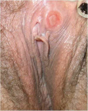 Clinical image of syphilitic chancre on the vulva.