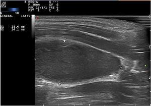 B-mode ultrasound image of a longitudinal section showing an oval hypoechogenic lesion beneath the sternocleidomastoid muscle.