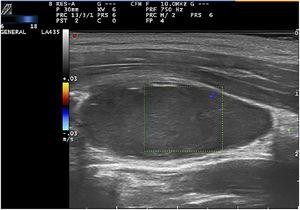 Color Doppler-mode image of a longitudinal section showing an absence of intralesional flow.