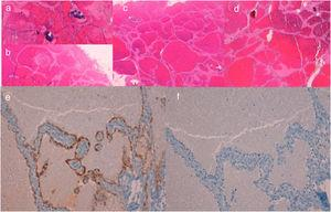 A and B, Case 1. Histology shows focal calcification inside the lesion and intravascular thrombosis (hematoxylin-eosin [HE], original magnification ×40). C, Case 2. Histology shows a well-circumscribed lobed mass composed of multiple, thin-walled, dilated and interconnected vascular channels that form sinusoidal structures (HE, original magnification ×40). D, Case 3. Histology shows dilated, interconnected vascular channels forming a sinusoidal pattern, with no evidence of calcifications or thrombi (HE, original magnification ×40). E, Case 2. Immunohistochemistry for WT1 (original magnification ×200). F, Case 2. Immunohistochemistry for D2-40 (original magnification ×200).