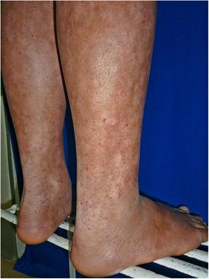 Capillaritis-type mycosis fungoides in an adolescent.