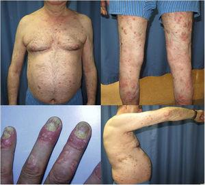 Erythematous plaques with thick, moderately infiltrated scale on the torso and upper and lower limbs. Periungual inflammation with ungual involvement in the form of trachyonychia, hyperkeratosis, oil drop, and onycholysis.