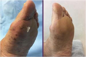 Multiple violaceous papules on the sole of the left foot, at the start and end of treatment.