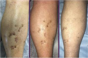 Evolution of the bluish papules and nodules on the right leg, before start of treatment with timolol gel, 0.5%, after 8 weeks, and after 3 months.