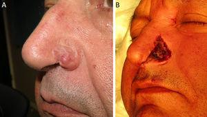 A, Recurrence of basal cell carcinoma in the left nasal ala. B, Postoperative defect after excision by Mohs micrographic surgery.