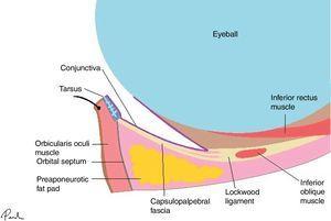 Basic eyelid anatomy. Anterior lamella (skin and orbicularis oculi muscle), medial lamella (orbital septum and orbital fat), and posterior lamella (capsulopalpebral fascia, tarsus, and conjunctiva).