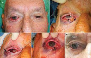 Pentagonal excision. A, Basal cell carcinoma in the lower right eyelid in an 85-year-old male patient with mixed ectropion (involutional and mechanical caused by the tumor). B and C, Pentagonal tumor resection was designed to achieve the oncological objective as well as the reconstructive one, by avoiding ectropion with a reduction in the horizontal component of the eyelid. Outcome of the technique immediately after the procedure (D) and at 8 weeks (E).