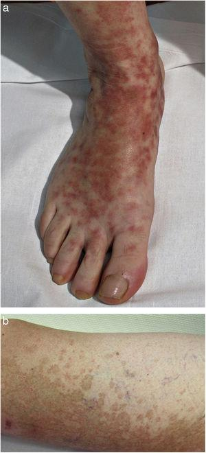 Schamberg disease. A, Orange-red macules that tend to coalesce, forming large plaques. B, Peripheral cayenne pepper spots.