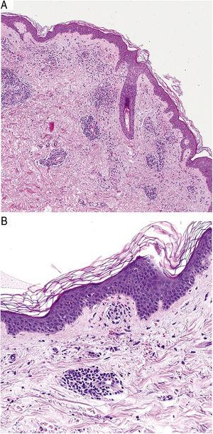 Histopathological features of Schamberg disease. A, Infiltrate involving small vessels in the superficial dermis. B, Lymphocytic infiltrate, with luminal narrowing and extravasated red blood cells.
