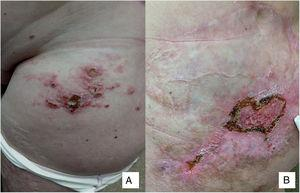 A, Confluent erythematous nodules and papules on the groin and anterior aspect of the left thigh. B, Nodules and ulcerated area (diameter, 4-5  cm) with hyperkeratotic borders inside a cicatricial plaque.