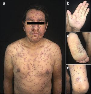 Initial clinical image. A, Multiple smooth, well-defined erythematous-violaceous papules and nodules. B, Palms. C, Soles. D, Left thigh showing well-defined ulcers with a violaceous border and dirty base.