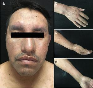 Clinical image of the new lesions. Violaceous, infiltrated papules, some of which are excoriated and crusted, on the face (A) and distal area of the upper limbs (B-D).
