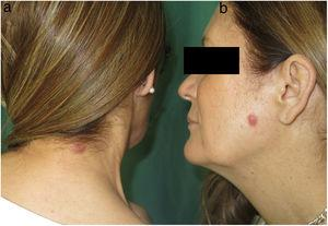 Firm, infiltrated, erythematous cupuliform papules in the posterior cervical region (A) and on the left cheek (B).