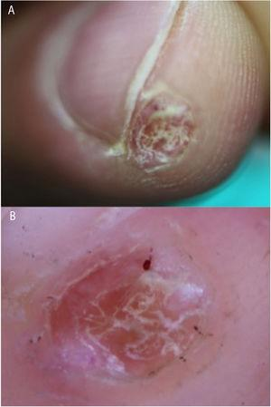A) The hyperkeratotic lesion on the pulp of the finger. B) Dermoscopic image showing hemorrhagic areas and hyperkeratosis against a pinkish-orange background.