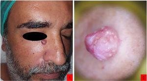 A, Red nodule with a smooth surface located in the upper third of the right nasogenian sulcus. B, Dermoscopy. Reddish-white bed with irregular telangiectatic vessels and cotton-white areas.