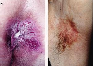 A, Clinical appearance of extramammary Paget disease (EMPD) in the perianal region. B, Axillary EMPD.