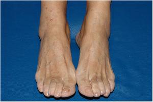 Skin-colored papules and nodules compatible with neurofibromas on the front of the legs and on the feet.