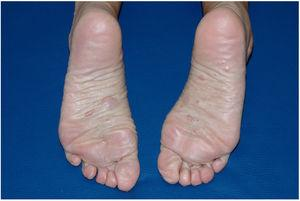 Skin-colored papules and nodules compatible with neurofibromas on the soles of both feet.