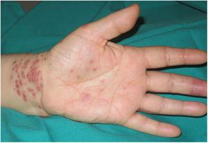Similar lesions on the palm and wrist of the left hand, and an erosion on the palmar aspect of the third finger of the same hand.
