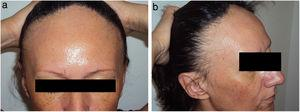 Premenopausal woman with frontal fibrosing alopecia. A, Frontal view. B, Lateral view (note the presence of facial papules).