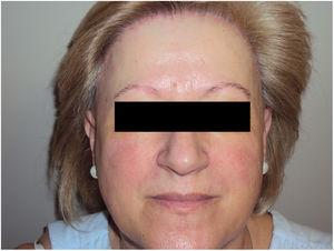 Woman with frontal fibrosing alopecia and signs of rosacea.