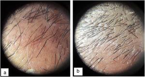 Dermatoscopy image of a patient with androgenetic alopecia. A, Before the intervention (198 hairs/cm2). B, After 2 months (308 hairs/cm2).
