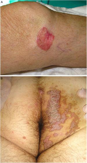 A, Porokeratosis of Mibelli. Round, erythematous plaque measuring 4cm with a raised hyperkeratotic border on the left knee. Diagnosis was confirmed by histology. B, Porokeratosis ptychotropica. Multiple coalescent erythematous scaling plaques with a hyperkeratotic edge in the perianal area and on the right buttock.