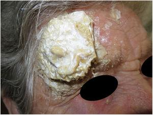 Appearance of patient's forehead on entering the consulting room.