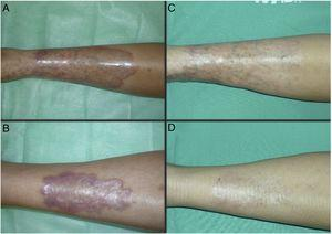 Case 1. A 21-year-old woman with DM1 and necrobiosis lipoidica with a long time since onset (72 months). Appearance of the lesions at the start (A and B) and after completing treatment with conventional PDT with MAL (C and D). gr1.
