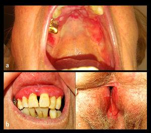 Clinical images. Erosions in hard palate (a) and erosive gingivitis (b) without lichenoid striae. Genital mucous erosions (c) with effacement of labia minora and synechiae.