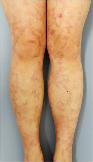 Infiltrative brownish erythema and livedo racemosa on the bilateral lower legs.