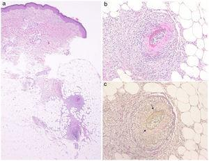 (a) Histological features showing necrotizing vasculitis in the subcutis. (b) Higher magnification revealed subintimal fibrinoid necrosis. (c) Partially disrupted internal elastic lamina (arrow) (Elastica van Gieson stain).