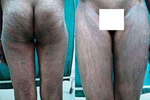 Flagellate erythema and linear papules with scales showing Koebner's phenomenon over buttocks (left panel) and thighs (right panel).