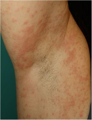 Multiform erythema-like eruption in a patient with SARS-CoV-2 infection.