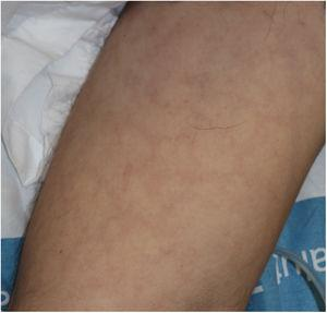 Livedoid rash with a transient course on the trunk of a patient with severe COVID-19.