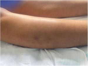 Nodular lesion (2cm in diameter) with a brownish surface located on the outer aspect of the right leg.