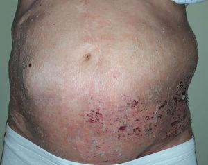 Pseudohernia on the left flank coinciding with herpes zoster in the crusting phase.