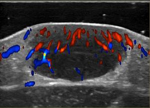 Color Doppler ultrasound. Note the hypoechogenic, nodular dermal formation with a solid appearance and well-defined borders pushing up the epidermis. Note the moderate vascularization in the interior of the lesion.