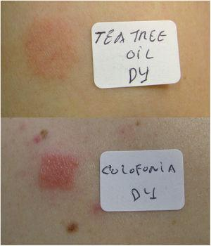Positive epicutaneous tests (D4) for tea tree oil and for colophony (Case 2).