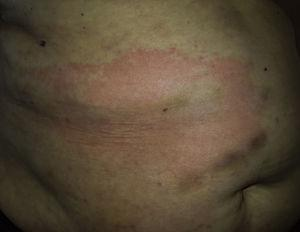 A large semicircular erythematous plaque with a clearly demarcated papular margin and central lightening, located on the abdomen.