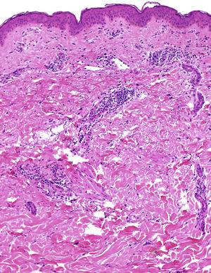 The biopsy shows a perivascular inflammatory infiltrate composed mainly of lymphocytes, which involves the superficial and middle dermis (hematoxylin–eosin).