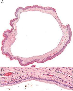 A, Hematoxylin–eosin x2. B, Hematoxylin–eosin x20.