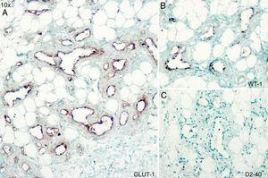 Immunohistochemistry for glucose transporter 1 (GLUT1) (A), Wilms tumor 1 (WT1) (B), and D2-40 (C); original magnification ×10.