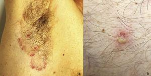 A, Erythematous papules with a scaly surface and pustules grouped at the edge of polycyclic plaques located in the right armpit. B, Detail of a flaccid pustule corresponding to a subcorneal pustular dermatosis lesion.