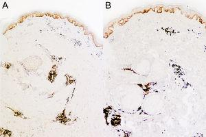 Immunohistochemistry images showing positive staining for κ (A) and λ (B) immunoglobulin light chains.