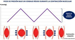 Pressure peaks under a stiff bandage during muscle contraction.