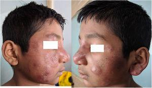 A, B: Erythematous and edematous plaques over the face, some of them showing slight vesiculations.