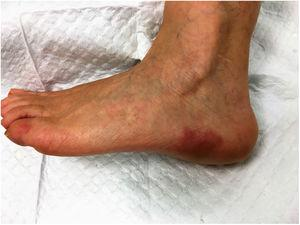 Well defined erythematoviolaceous plaques on the outer side of the left foot.