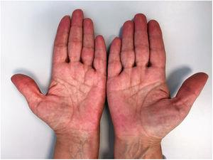 Erythema on the palmar surface of the fingers.
